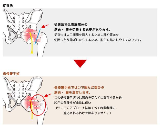 従来の手術法の違
