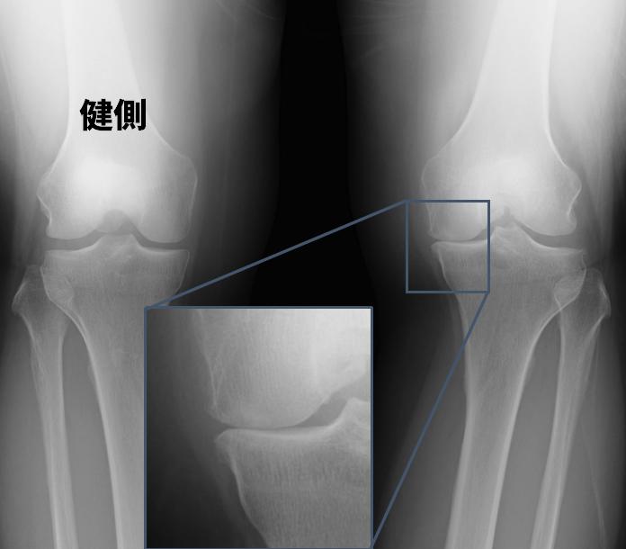 左陳旧性ACL不全+変形性膝関節症(OA)