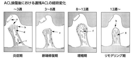 """関節内靭帯が損傷すると""""自然治癒しません"""""""