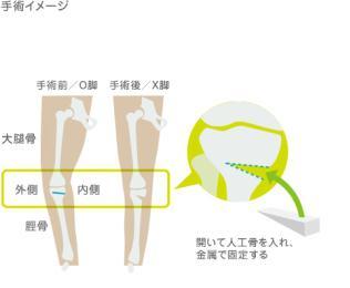 高位脛骨骨切り術HTO(O脚矯正術)