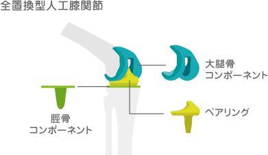 人工膝関節置換術TKA